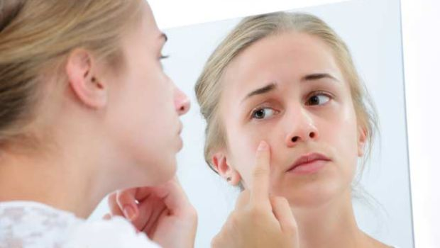 What is the problem of pimples?  So take these 6 tips